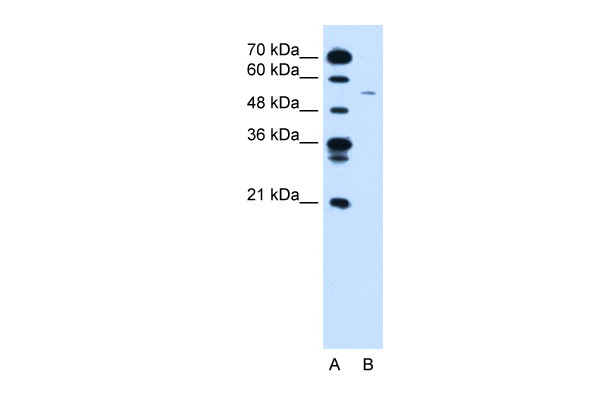CCNB1 antibody - C-terminal region (ARP30161_P050) in Human Jurkat cells using Western Blot