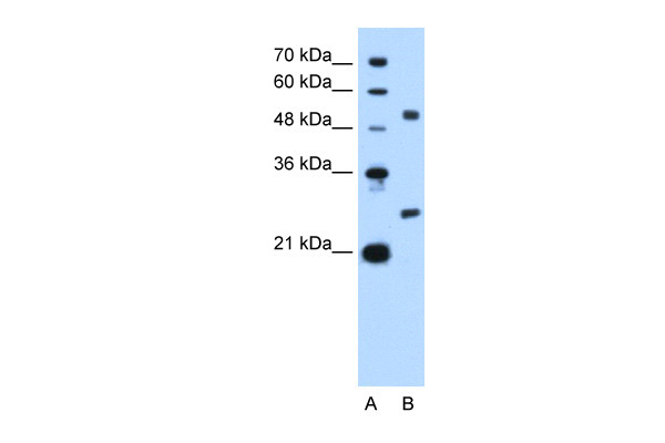 BCL2L1 antibody - N-terminal region (ARP30475_T100) in Human HepG2 cells using Western Blot