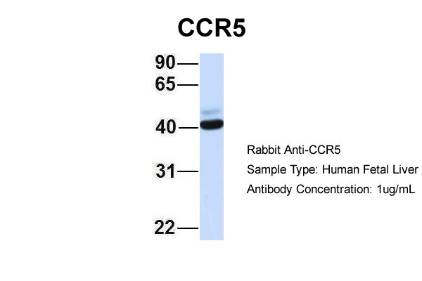 CCR5 antibody - middle region (ARP30788_P050) in Hum. Fetal Liver cells using Western Blot