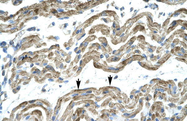 C13ORF8 antibody - middle region (ARP31889_T100) in Human Muscle cells using Immunohistochemistry
