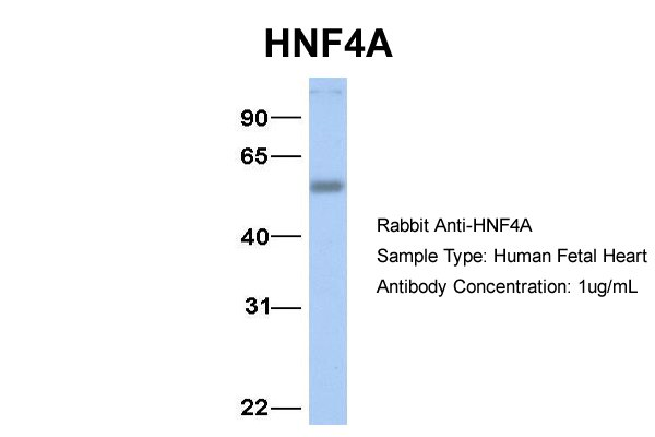HNF4A Antibody - N-terminal region (ARP31946_P050) in Hum. Fetal Heart cells using Western Blot
