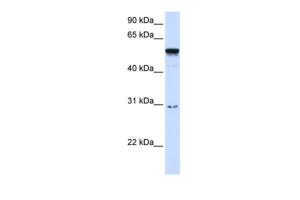 AIRE antibody - middle region (ARP31969_P050) in Human Pancreas cells using Western Blot