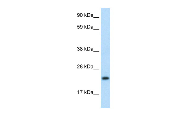ASCL1 antibody - N-terminal region (ARP32355_T100) in Human Thymus cells using Western Blot