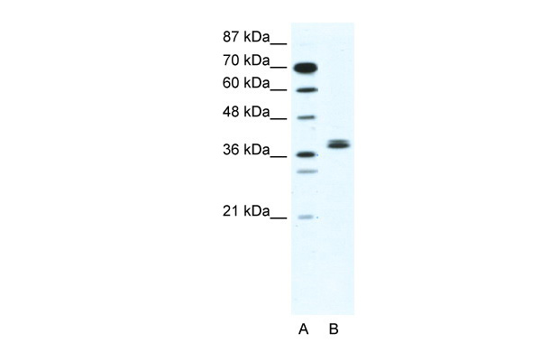 BHLHB5 antibody - N-terminal region (ARP32430_T100) in Human Jurkat cells using Western Blot