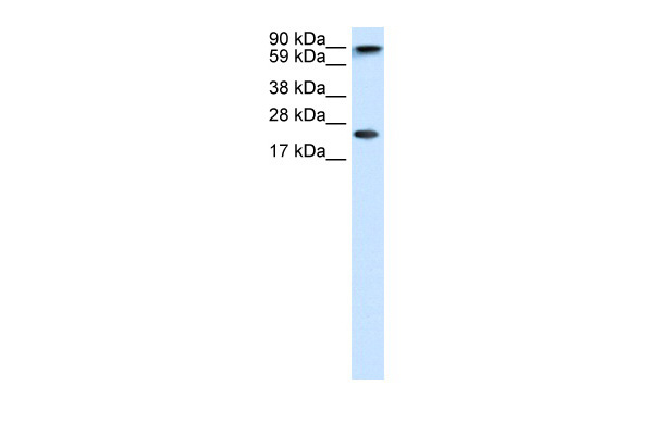 CBX5 antibody - middle region (ARP32481_T100) in Human brain cells using Western Blot