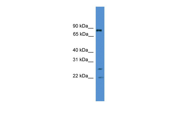 AKAP8L antibody - middle region (ARP32560_P050) in Human Jurkat cells using Western Blot