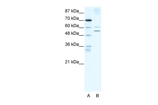 AIRE antibody - N-terminal region (ARP32649_T100) in Human HepG2 cells using Western Blot