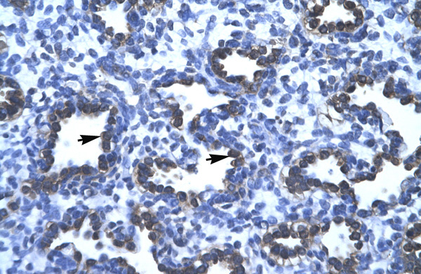 APEX1 antibody - N-terminal region (ARP32651_T100) in Human Lung cells using Immunohistochemistry
