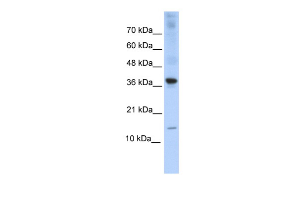 BATF antibody - middle region (ARP32772_P050) in Transfected 293T cells using Western Blot