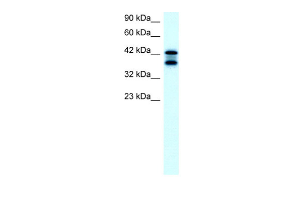 ACAT2 antibody - middle region (ARP32791_T100) in Human K562 cells using Western Blot