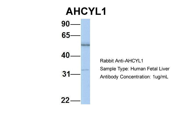 AHCYL1 antibody - N-terminal region (ARP33131_P050) in Hum. Fetal Liver cells using Western Blot