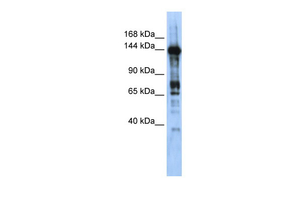CASZ1 antibody - middle region (ARP33139_P050) in Transfected 293T cells using Western Blot