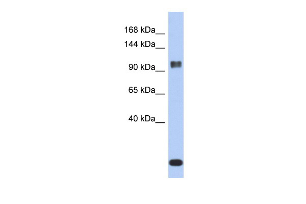 ATXN7 antibody - middle region (ARP33364_P050) in Human ACHN cells using Western Blot