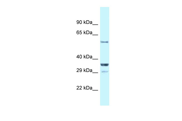 Cbll1 antibody - C-terminal region (ARP33600_P050) in Mouse Kidney cells using Western Blot