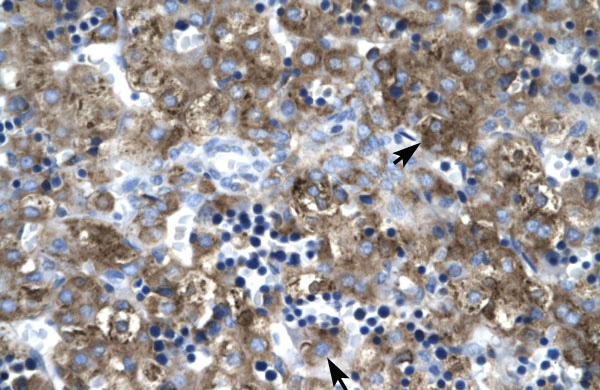 CLDN1 antibody - C-terminal region (ARP33623_P050) in Human Liver cells using Immunohistochemistry