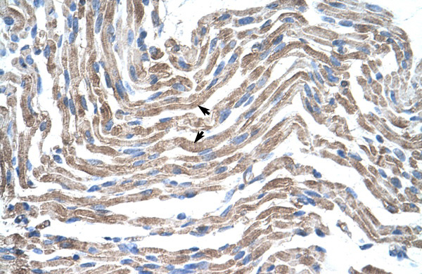 CLDN11 antibody - C-terminal region (ARP33628_P050) in Human Muscle cells using Immunohistochemistry