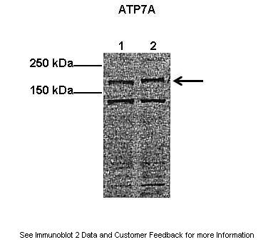 ATP7A antibody - middle region (ARP33798_P050) in Mouse, Human cells using Western Blot