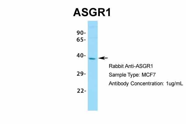 ASGR1 Antibody - middle region (ARP33805_P050) in Human MCF7 cells using Western Blot