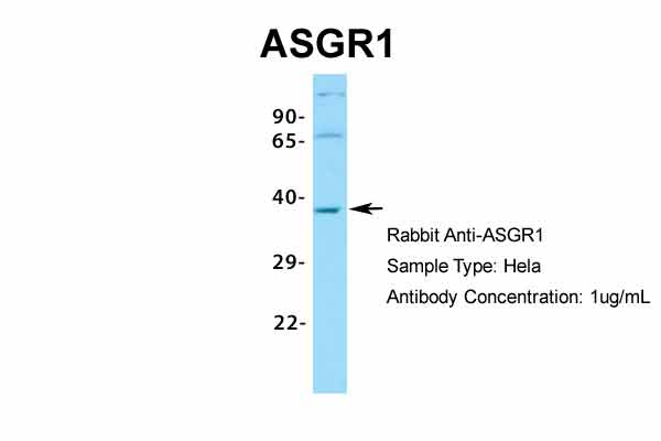 ASGR1 Antibody - middle region (ARP33805_P050) in Human Hela cells using Western Blot