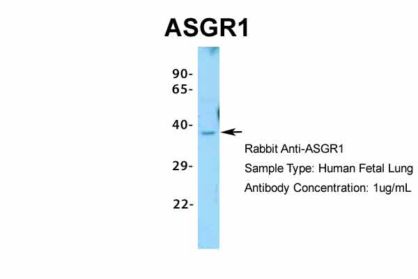 ASGR1 Antibody - middle region (ARP33805_P050) in Hum. Fetal Lung cells using Western Blot