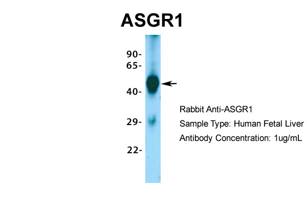 ASGR1 Antibody - middle region (ARP33805_P050) in Hum. Fetal Liver cells using Western Blot