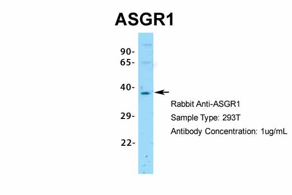 ASGR1 Antibody - middle region (ARP33805_P050) in Human 293T cells using Western Blot