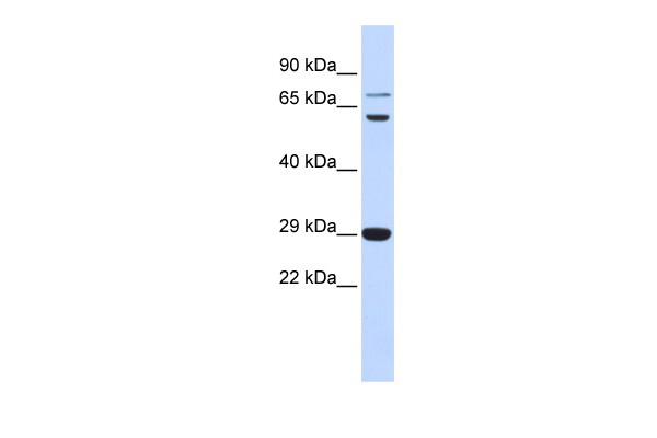 CD40LG antibody - middle region (ARP33831_P050) in Human Muscle cells using Western Blot