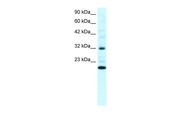 ARHGDIG antibody - N-terminal region (ARP33854_P050) in Human Daudi cells using Western Blot