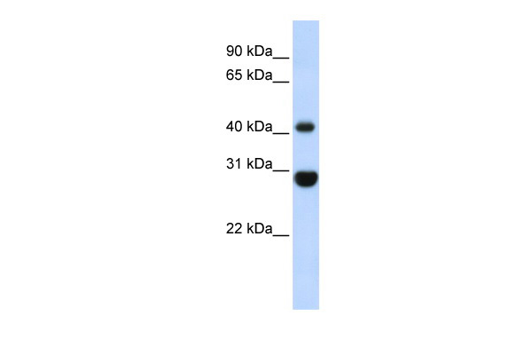CNP antibody - middle region (ARP33879_P050) in Human Fetal Muscle cells using Western Blot