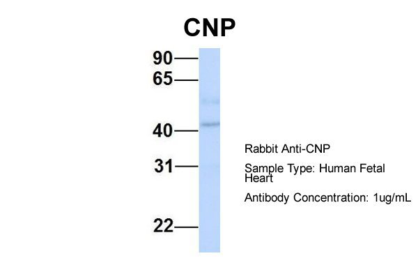 CNP antibody - middle region (ARP33879_P050) in Hum. Fetal Heart cells using Western Blot