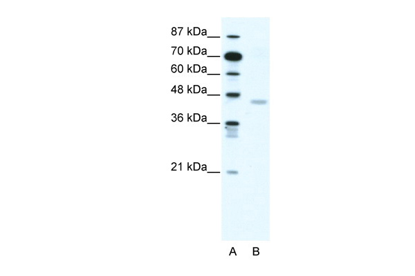 CNP antibody - N-terminal region (ARP33880_T100) in Human Jurkat cells using Western Blot