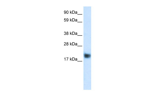 CSRP3 antibody - C-terminal region (ARP34182_P050) in Human Muscle cells using Western Blot