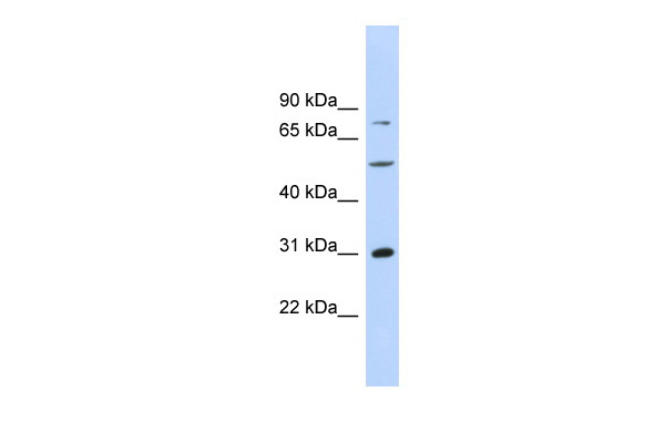 ASPH antibody - middle region (ARP34194_P050) in Human MCF-7 cells using Western Blot