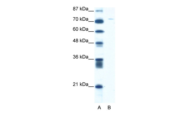 ASPH antibody - middle region (ARP34195_T100) in Human Jurkat cells using Western Blot