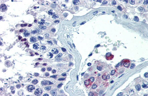 ASH2L antibody - middle region (ARP34202_P050) in Human Testis cells using Immunohistochemistry