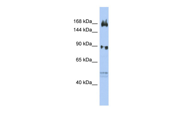 AFF2 antibody - N-terminal region (ARP34260_P050) in Human OVCAR3 cells using Western Blot
