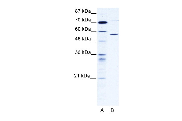 CCT4 antibody - C-terminal region (ARP34271_T100) in Human 293T cells using Western Blot