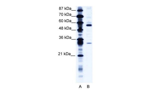 CORO1A antibody - C-terminal region (ARP34285_T100) in Human Jurkat cells using Western Blot
