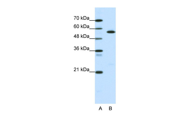 CORO1A antibody - middle region (ARP34286_P050) in Human Daudi cells using Western Blot