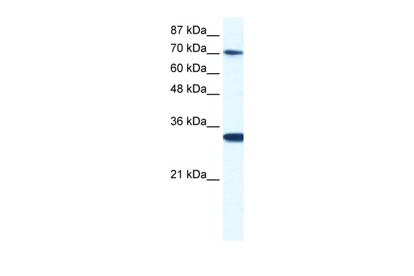 CNOT3 antibody - N-terminal region (ARP34318_P050) in Human Jurkat cells using Western Blot