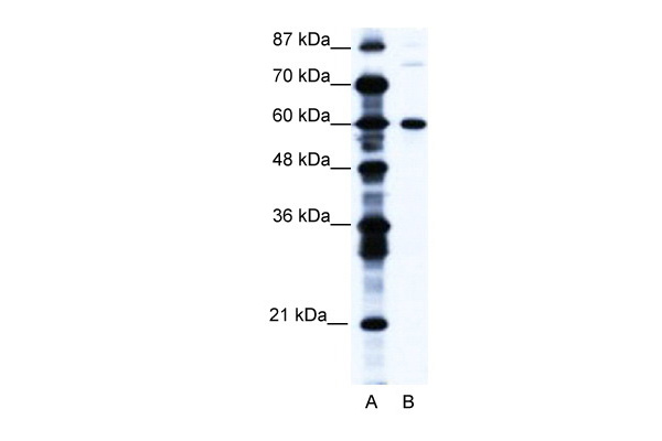 CNOT3 antibody - N-terminal region (ARP34318_T100) in Human Jurkat cells using Western Blot
