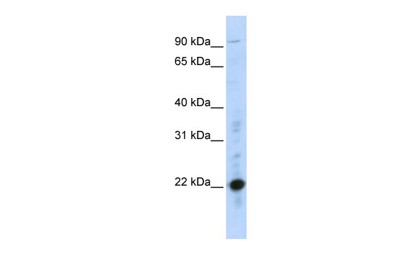 CRIP2 antibody - middle region (ARP34373_P050) in Human MCF-7 cells using Western Blot