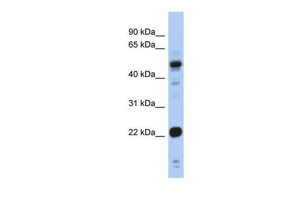 CSRP1 antibody - middle region (ARP34391_P050) in Human Stomach cells using Western Blot