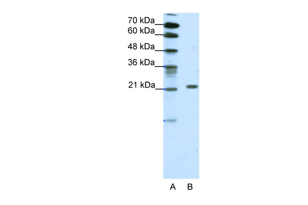 CBX1 antibody - middle region (ARP34427_T100) in Human HepG2 cells using Western Blot