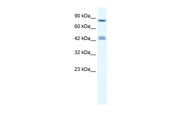 CBX8 antibody - middle region (ARP34600_P050) in Human HepG2 cells using Western Blot