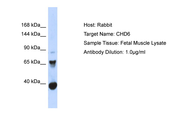 CHD6 Antibody - C-terminal region (ARP34635_P050) in Human Fetal Muscle cells using Western Blot