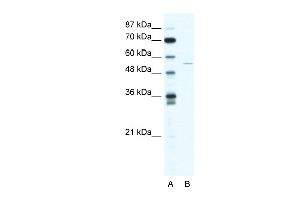 ZNF289 antibody - N-terminal region (ARP34642_T100) in Human HepG2 cells using Western Blot
