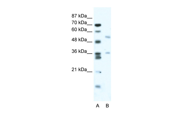 BTBD3 antibody - middle region (ARP34740_T100) in Human Jurkat cells using Western Blot