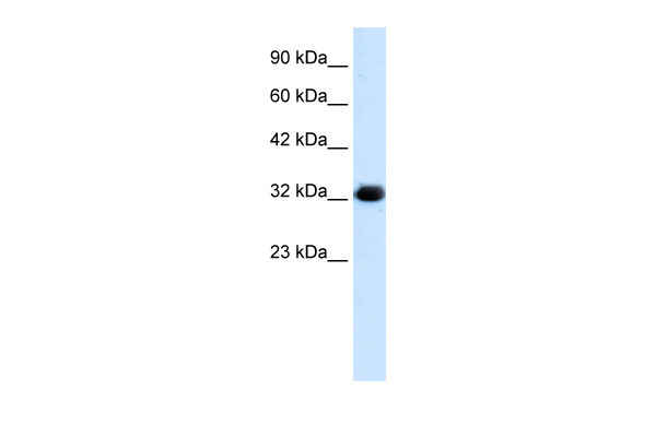HS747E2A antibody - middle region (ARP34804_T100) in Human HepG2 cells using Western Blot