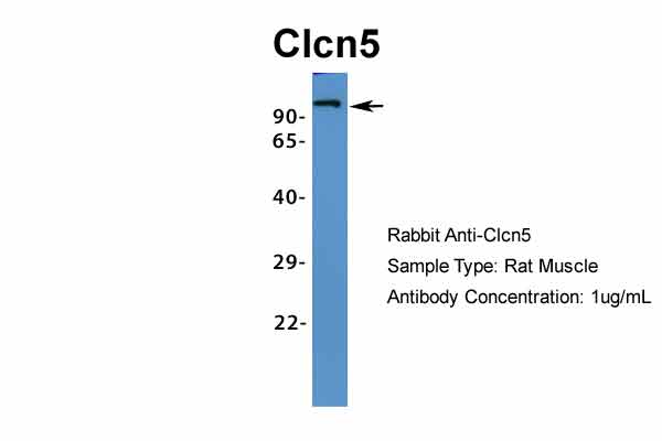 Clcn5 antibody - middle region (ARP34914_P050) in Rat Muscle cells using Western Blot